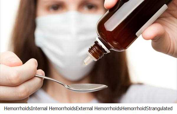 Hemorrhoids,Internal Hemorrhoids,External Hemorrhoids,Hemorrhoid,Strangulated Hemorrhoid Treatment,Hemorrhoid Treatment,Piles